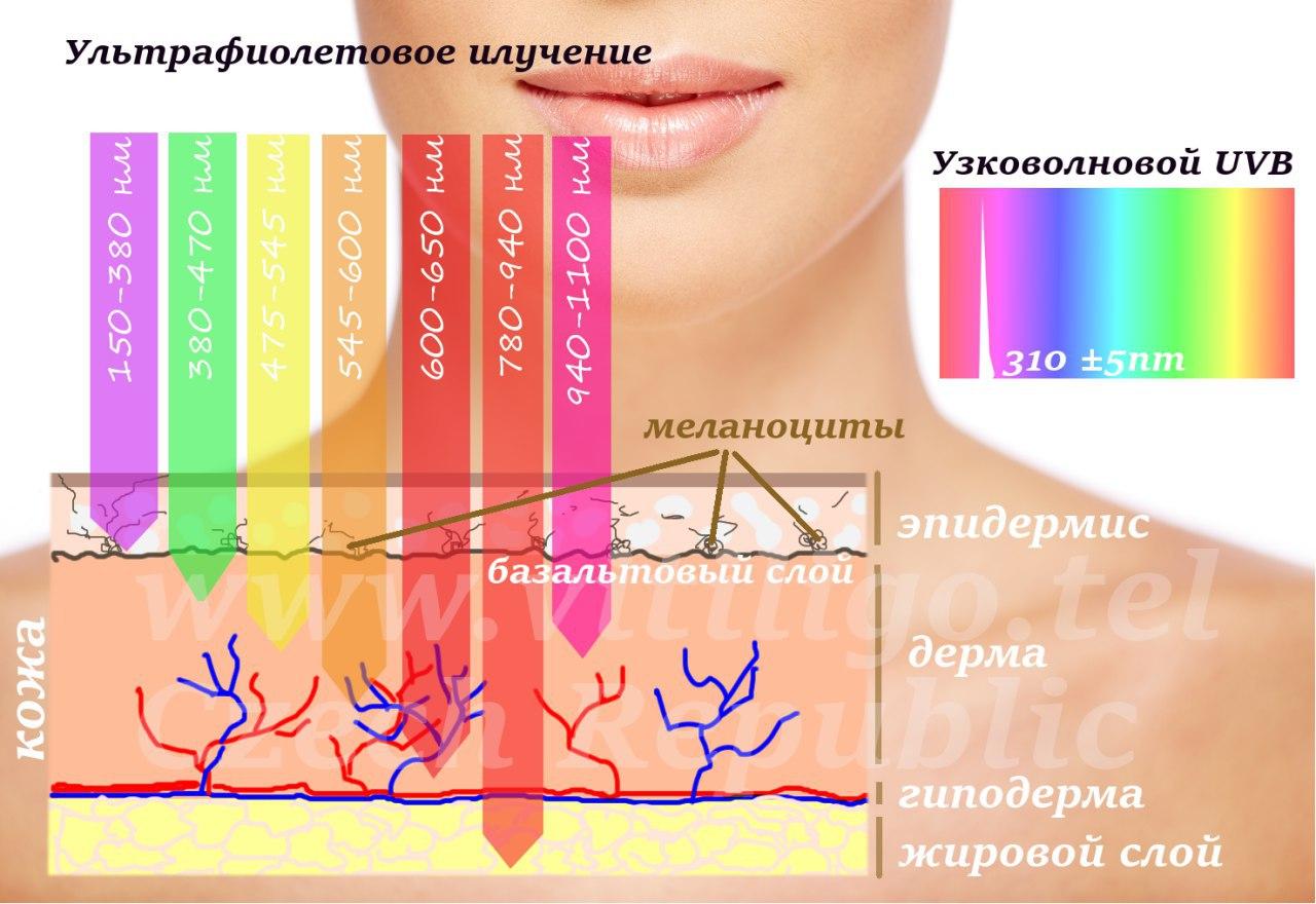 Фототерапия при псориазе в спб