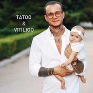 витилиго татуировки